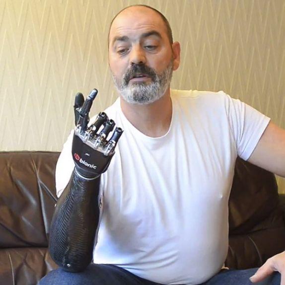 bebionic3-bionic-prosthetic-hand